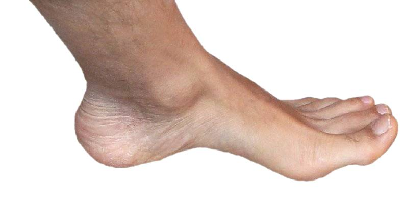 Foot and Sock1.jpg